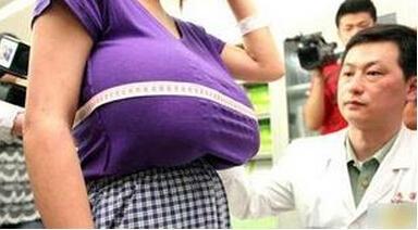 女部太影响正常活缩乳术