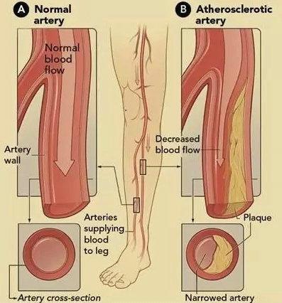 下肢动脉硬化闭塞症_
